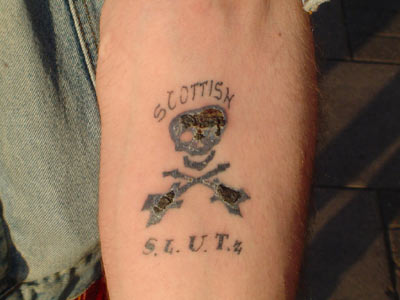 bill's skullox tattoo BiLL BuMP'z scottish SKuLLoX tatt - still scabby!